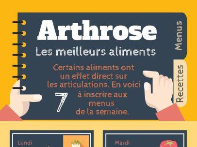 arthrose 2